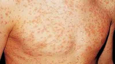 Через сколько проявляется СПИД – симптомы и стадии заболевания