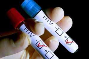 Что необходимо знать о тестировании на ВИЧ