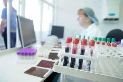 Где можно сдать кровь анонимно на ВИЧ
