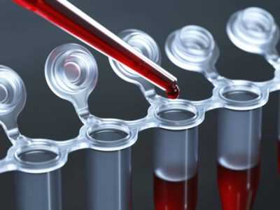 Лейкоз, анализ крови - как проводится и на что указывает