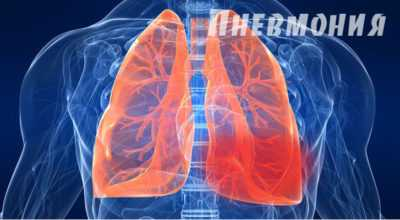 Пневмония – что это такое