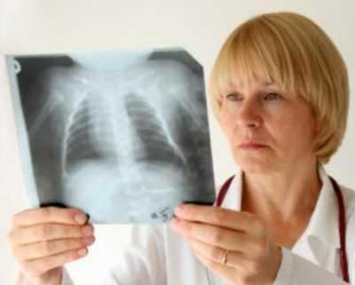 Признаки и диагностика пневмонии – как определить воспаление лёгких