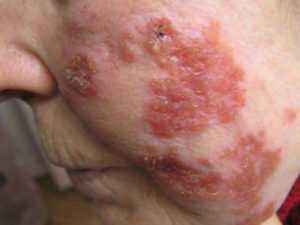 Признаки и симптомы СПИДа