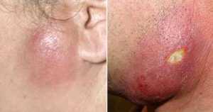 Признаки поражения кожи и мягких тканей