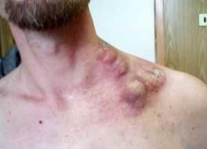 Прогресс и симптомы хронического лимфолейкоза