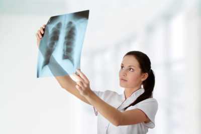 ВИЧ и туберкулез - чем опасно заболевание при иммунодефиците