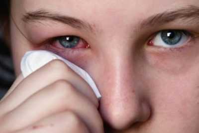 Вирусный конъюнктивит у детей - методы лечения