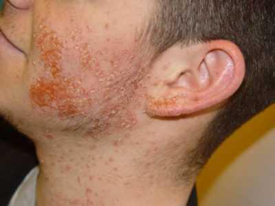 Чем лечить золотистый стафилококк - приписываемые препараты и назначаемое лечение