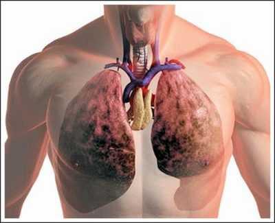 Что такое воспаление лёгких