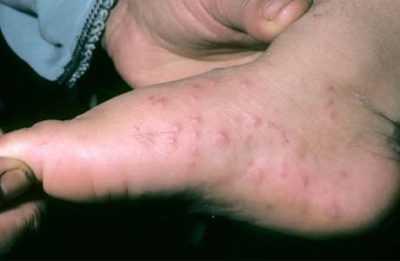 Энтеровирусный везикулярный стоматит или Синдром рука-нога-рот