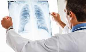 Факторы риска развития пневмонии