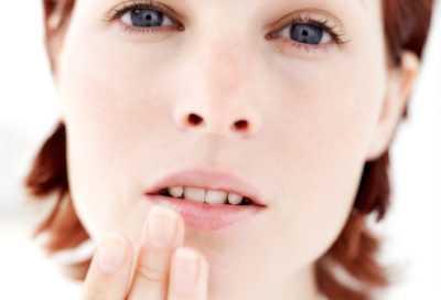 Герпес - скрытая опасность или простой косметический дефект