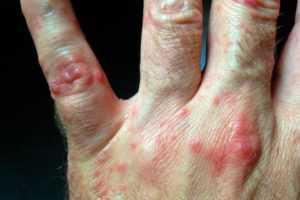 Инфекция Коксаки – о чем идёт речь