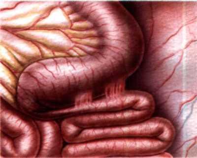 Непроходимость кишечника (илеус) – симптомы и лечение
