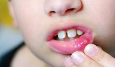 Отчего появляется вирусный стоматит у детей