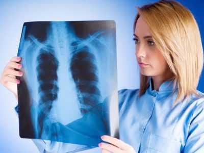 Пневмония. Коварная и продолжительная болезнь