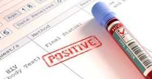 Положительный результат теста на ВИЧ