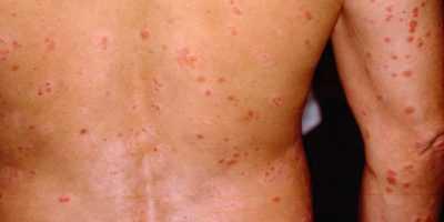 Проявления при ВИЧ-инфекции – сыпь