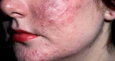 Стафилококк на лице - симптомы, причины, лечение, профилактика