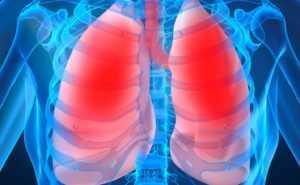 Виды воспаления лёгких в соответствии с локализацией