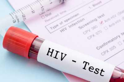 Как определить попадание ВИЧ-инфекции