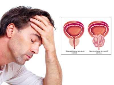 Какие бывают простатиты, симптомы и лечение болезни