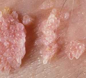 Классификация вируса ВПЧ