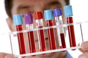 Косвенные методы выявления герпесвирусной инфекции