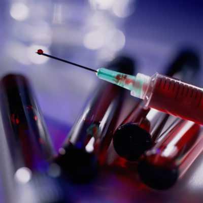 Способы передачи ВИЧ-инфекции – как заразиться можно инфекцией ВИЧ