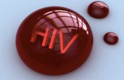 Всё о ВИЧ обратите внимание на ВИЧ-инфекцию – чуму (не только) 20 века