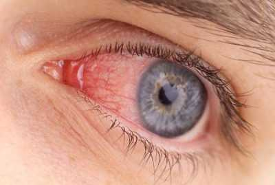 Глазные заболевания - капли от конъюнктивита вирусного для детей