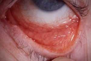 Хламидийные глазные инфекции