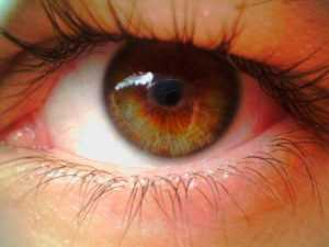 Лечение ЦМВ ретинита