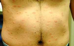 Некоторые вопросы о сифилисе