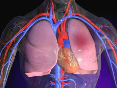 Отёк лёгких – симптомы и лечение