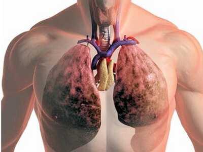 Пневмония - как передается и симптомы проявления