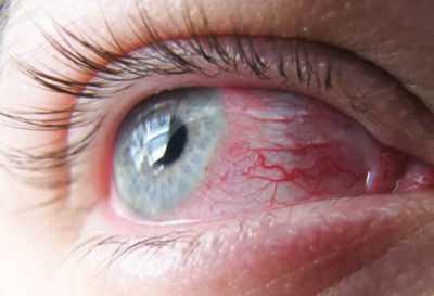 Раздражение в глазу - инфекция и её лечение