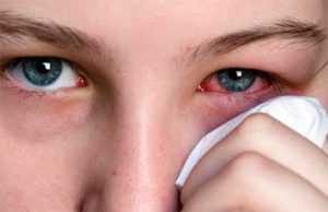 Симптомы глазных инфекций