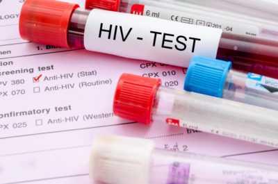 Тест 4 поколения на ВИЧ - каковы сроки и другие особенности проведения