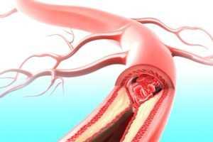 Важность гемоглобина