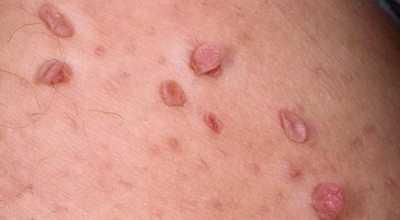 Вирус папилломы человека - особенности проявления и лечения заболевания