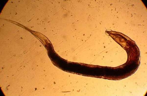 Острица под микроскопом