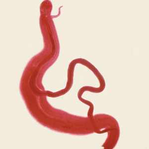 Schistosoma intercalatum