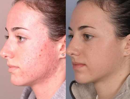 Причины появление демодекоза на лице
