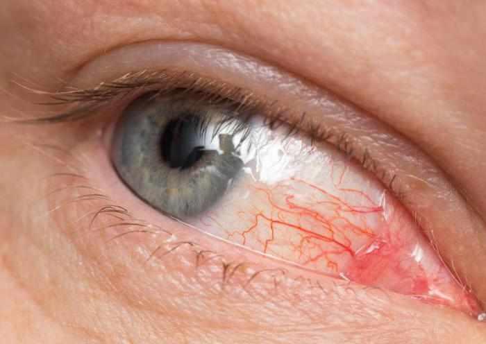 Клинические особенности токсоплазмоза глаз