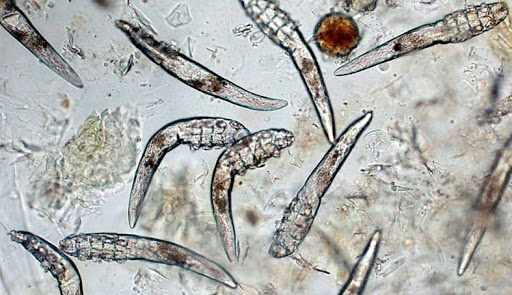 На фото клещи демодекс под микроскопом