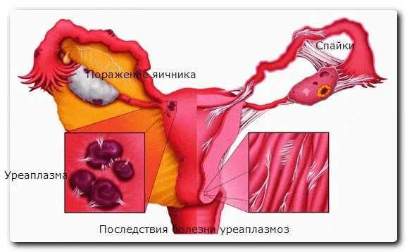 Возможные осложнения инфекции у мужчин