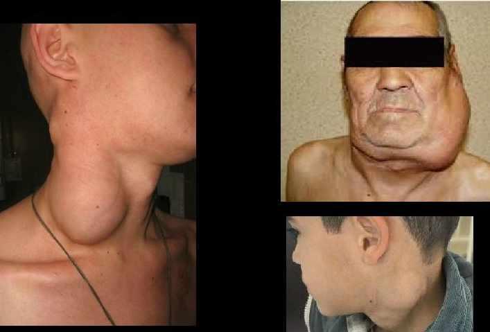 Симптомы клебсиеллы в носу и горле