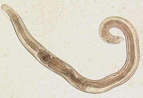 Паразит под микроскопом