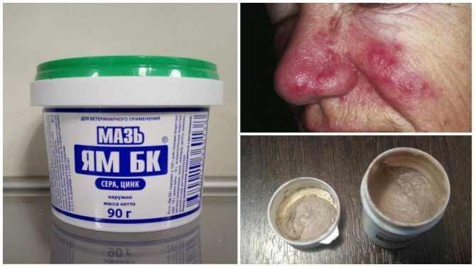 Нюансы при лечении демодекоза человека мазью Ям